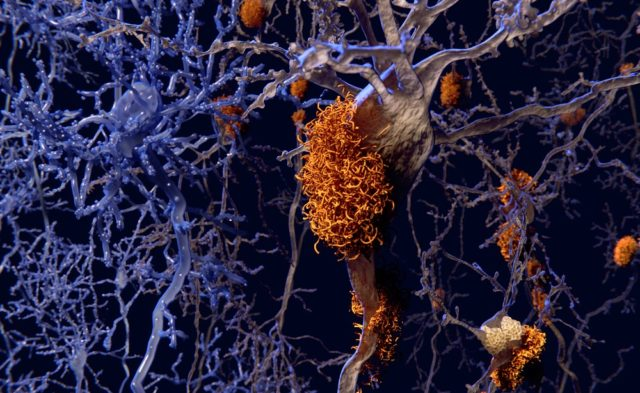 Alzheimer disease neurons