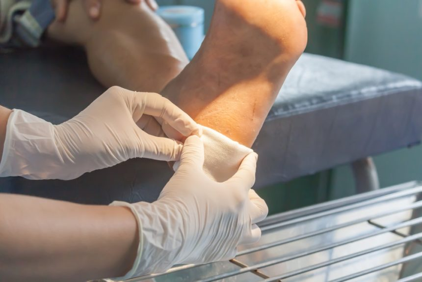 Clinician treating a patient's diabetic foot ulcer