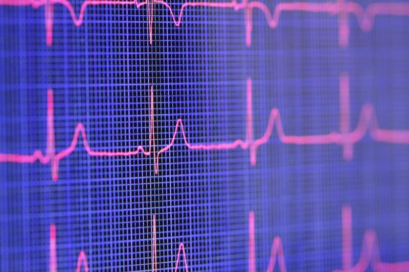 An electrocardiograph
