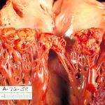 Endocarditis, heart, cardiology