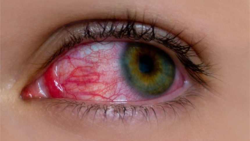 Glaucoma and Hypertension