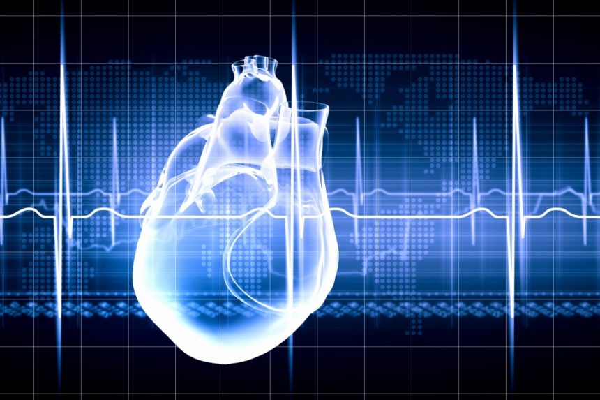 Coronary reperfusion improved with longer time between antiplatelet therapy and PCI