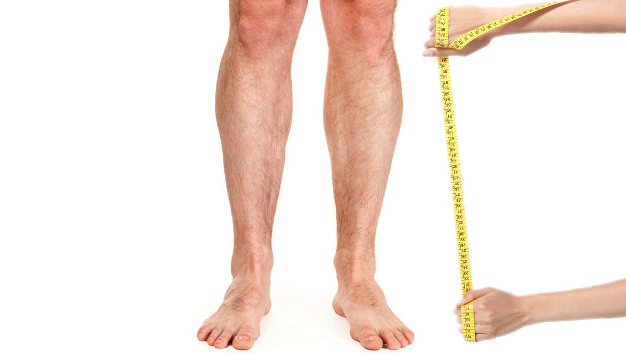 Leg-Lengthening Surgery Mostly Attracts   You Guessed It