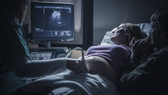 women getting an ultrasound
