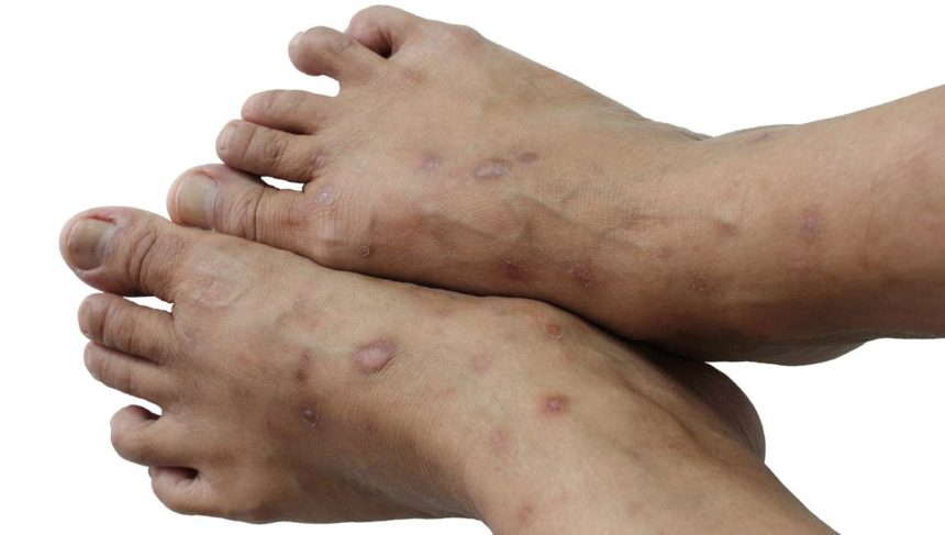 Link Between Psoriasis and Hypertension