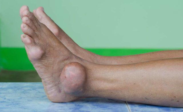 Alternative Medicine in Rheumatology