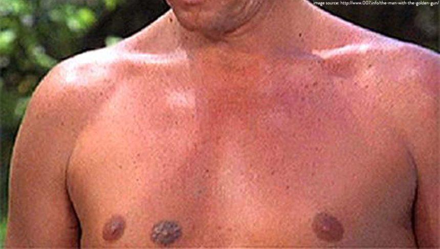 Triple Nipples