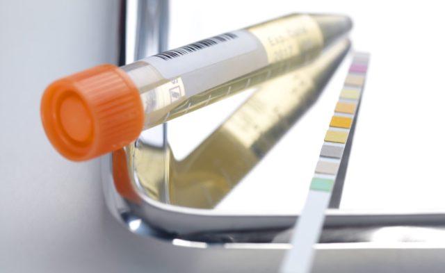 Urine sample in a laboratory