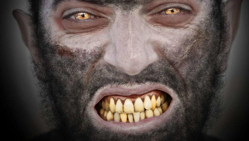 Werewolf Syndrome (CHL)