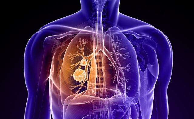 lung cancer_TS_103990748