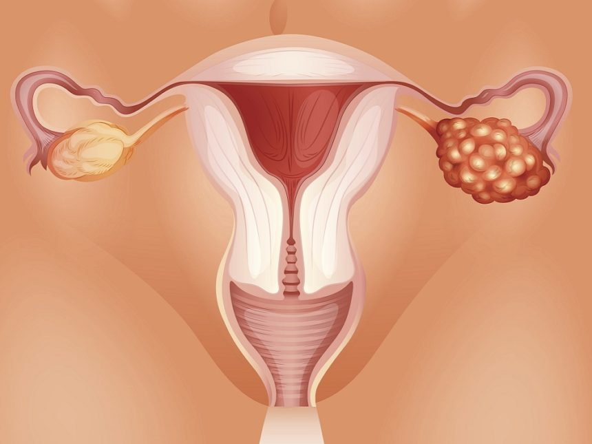 USPSTF recommends against ovarian cancer screening in women.