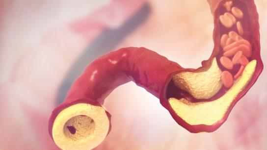 cholesterol plaque