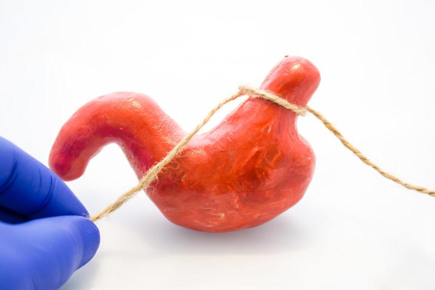 Enhanced Recovery Program Aids Bariatric Surgery Outcomes
