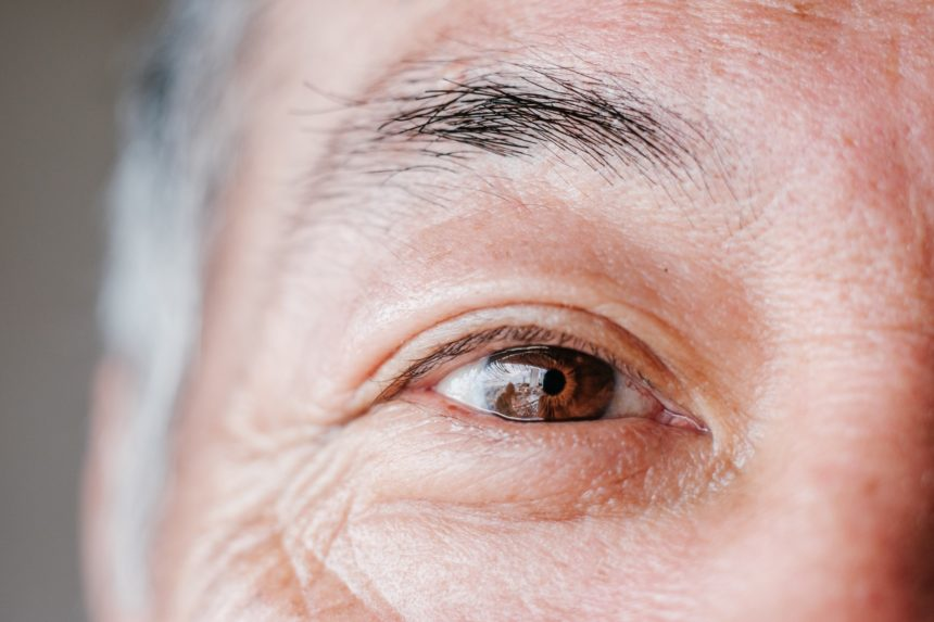 Pupillary dilation might hold the key for the early detection of Alzheimer disease.
