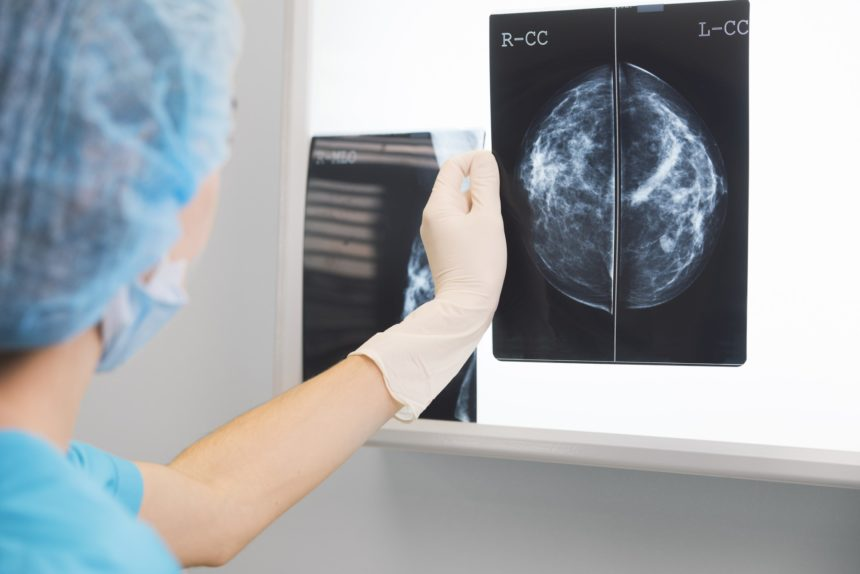A doctor interprets a mammogram.