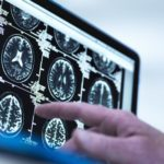 A doctor points to images of brain scans.
