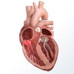 heart tricuspid