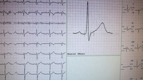 Heart rate monitor and graphs.