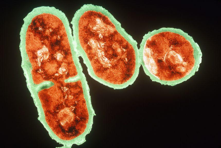 TEM of Cutibacterium acnes