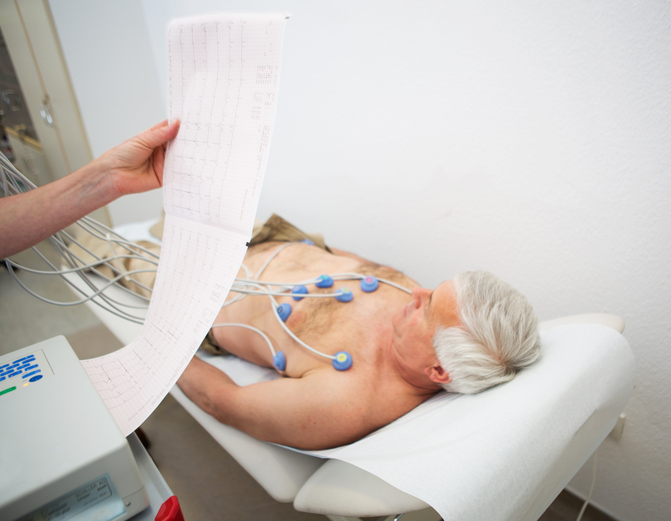 electrocardiography testing